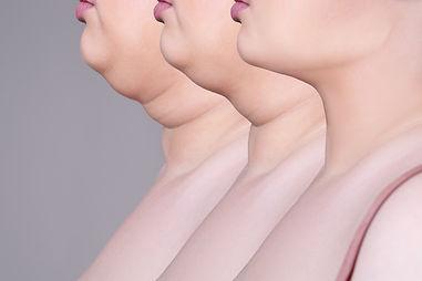 OPT-Hautverjuenung.jpg