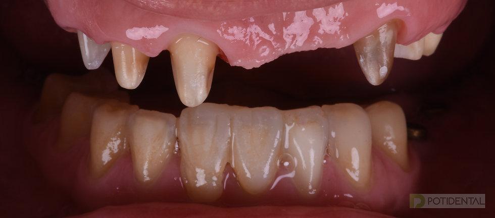 Implantológus Debrecen.jpg
