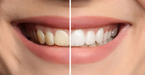 Smiling woman before and after teeth whi