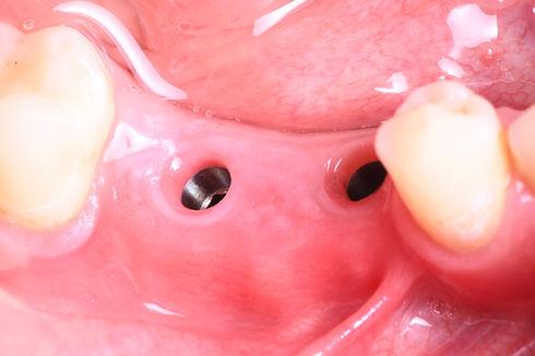 debrecen fogaszati implantatum.jpeg