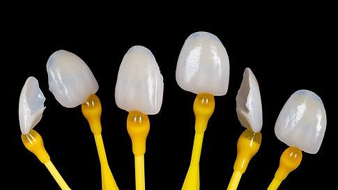 Dental Esthetic Ceramics Laminated Vene