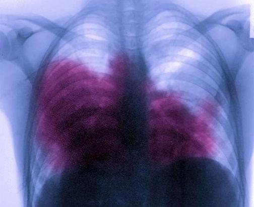 photo of xray legionnaires disease