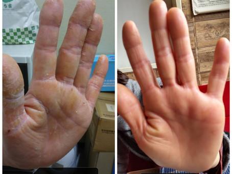 皮膚改善!アロマトリートメント好きなセラピストブログ