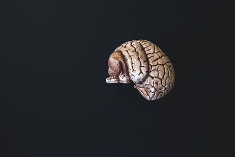 a-small-bronzed-model-brain.jpg
