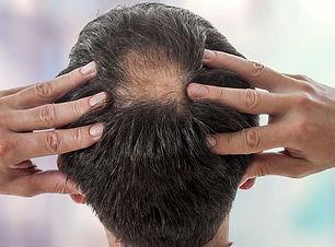 Liver-Doctor-Hair-Loss.jpg
