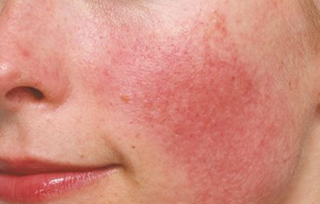 Do you have problems with flushing, blushing or redness of your face? April is Rosacea Awareness Mon