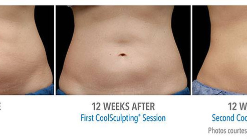 Say goodbye to stubborn fat. Coolsculpting has arrived at ASI Skin!