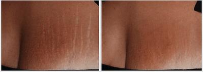 ResurFX-BA_stretch marks.png