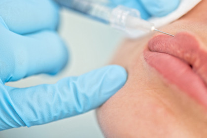 Are you considering getting a filler? Here are 5 tips from the American Academy of Dermatology to he