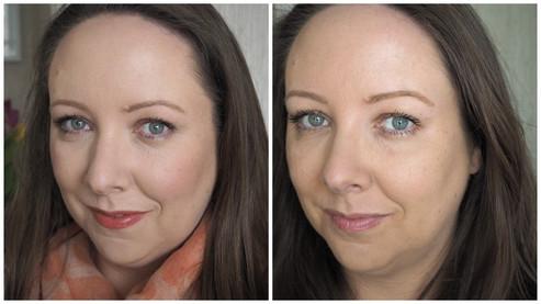 Read Karen's article on lovelygirliebits.com describing her first Botox treatment with Professor