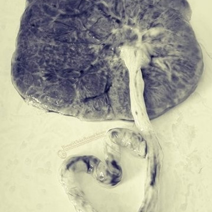 Virtual Placenta Training w/ LaKisha (2)