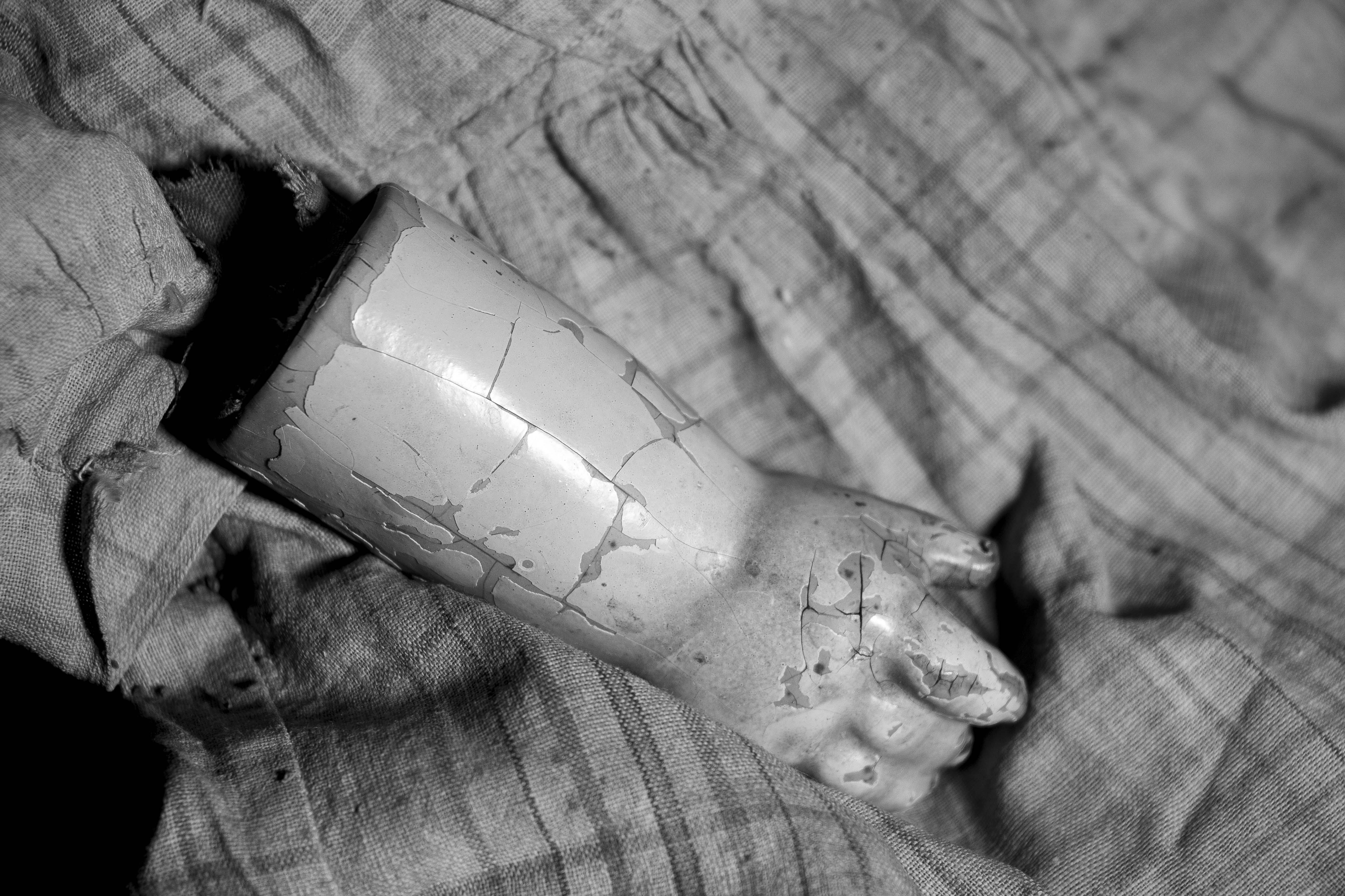 broken arm 2