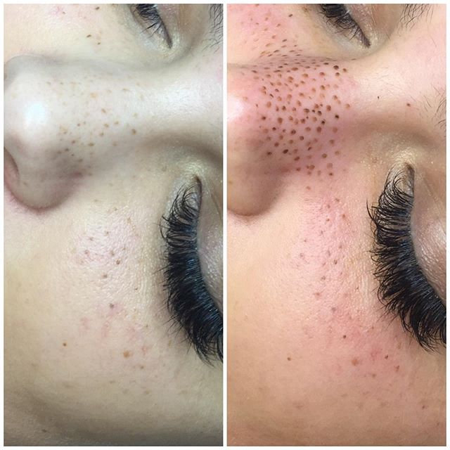 Freckle Touch Up