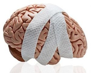 healing concussion