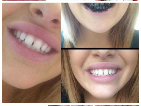 Fantastic Results from our Black Magic Tooth Polish