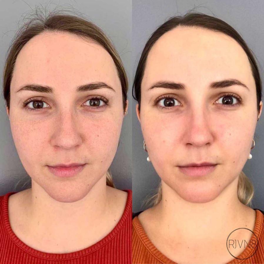 Plasma Skin Rejuvenation