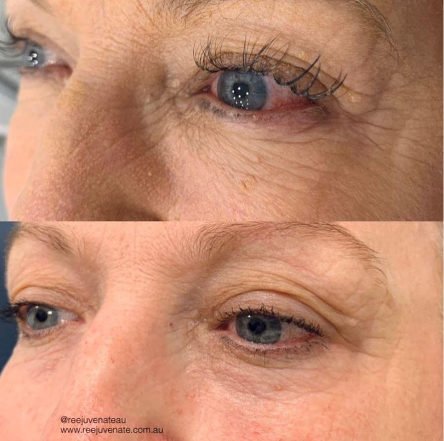 Full Eye Plasma Fibroblast