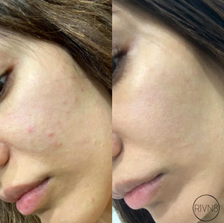 Mesotherapy Results