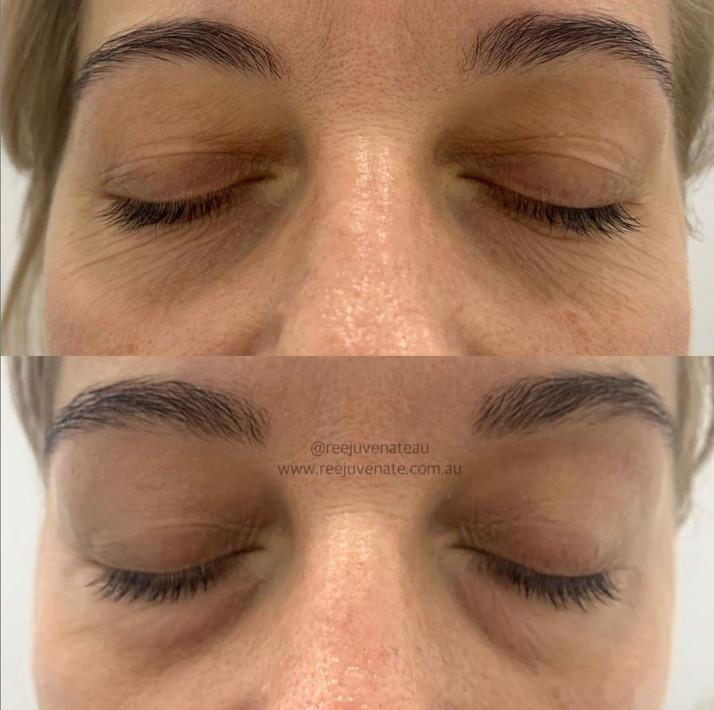Full Eye Plasma Skin Tightening