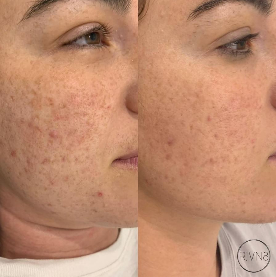 Skin Needling and Mesotherapy