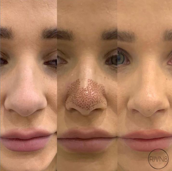Plasma Nose Sculpting