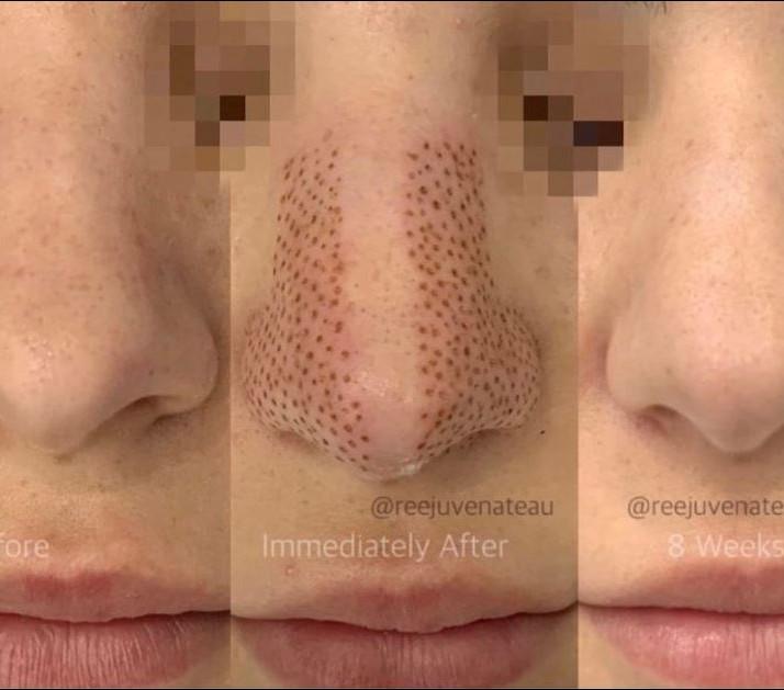Non Invasive Nose Sculpting