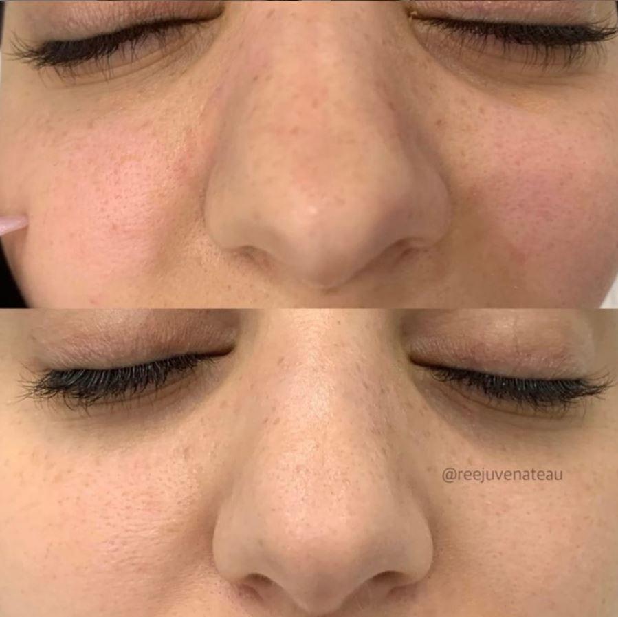 Non Surgical Nose Sculpting