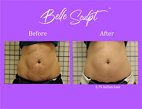 2-Before & After Sculpt-Stomach.PNG