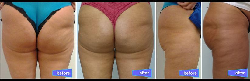 butt 1.jpg