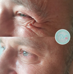 Anti%20Wrinkle%20Injections_edited