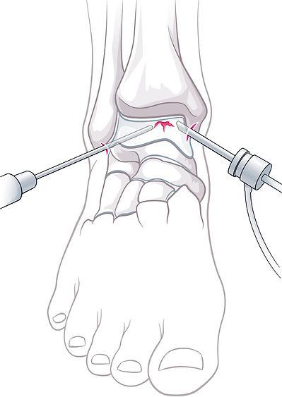 OSG-Arthroskopie