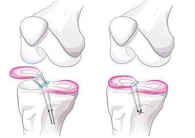 Meniskustransplantation