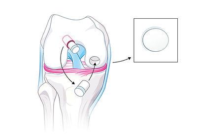 osteochondrale Transplantation