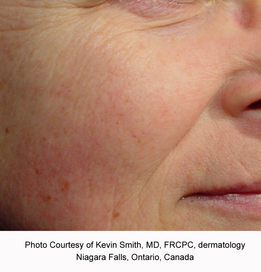 After Laser Genesis for Redness