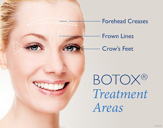 30 Unit Botox Package - $11/Unit