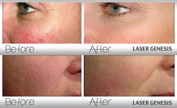 Laser Genesis Rejuvenative Facial