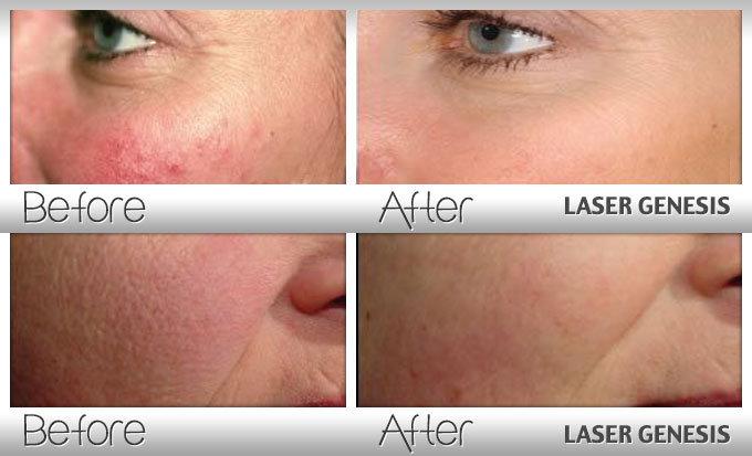 Laser Genesis Facial - 3 Pack