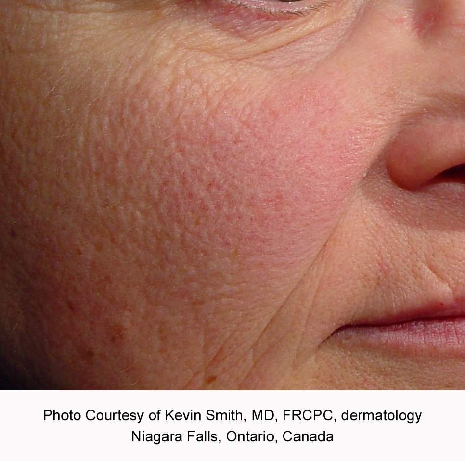Before Laser Genesis for Redness