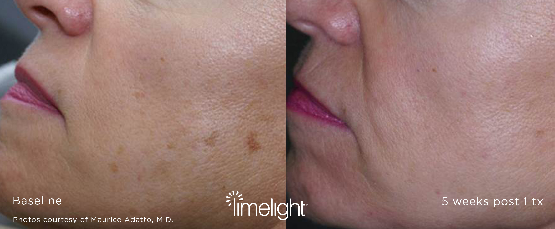 LimeLight IPL PhotoFacial