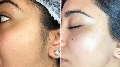 dermaplaning_before_and_after.jpg
