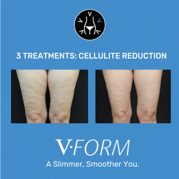 cellulite reduction legs.png
