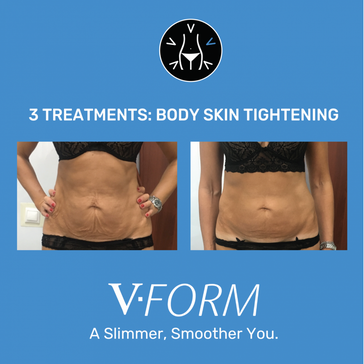 b&a tummy skin tightening.png