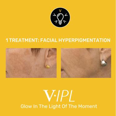 hyperpigmentation.png