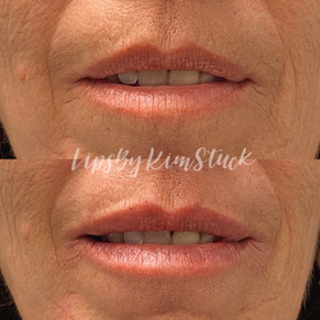 Lips By Kim Stuck