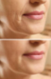 Microneedling-before-and-after-2.jpg