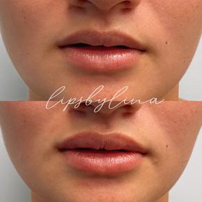 Lips by Lina
