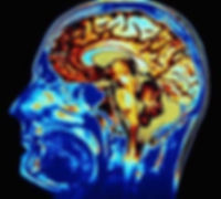 brain-damage-300x270.jpg