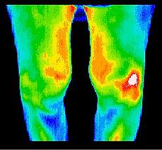 Arthritic-disorders.jpg