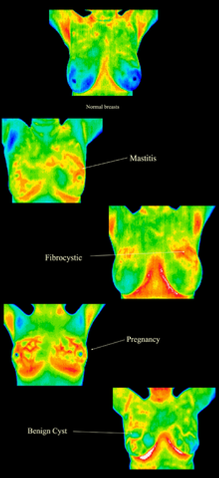 Digital-infrared-thermography.png