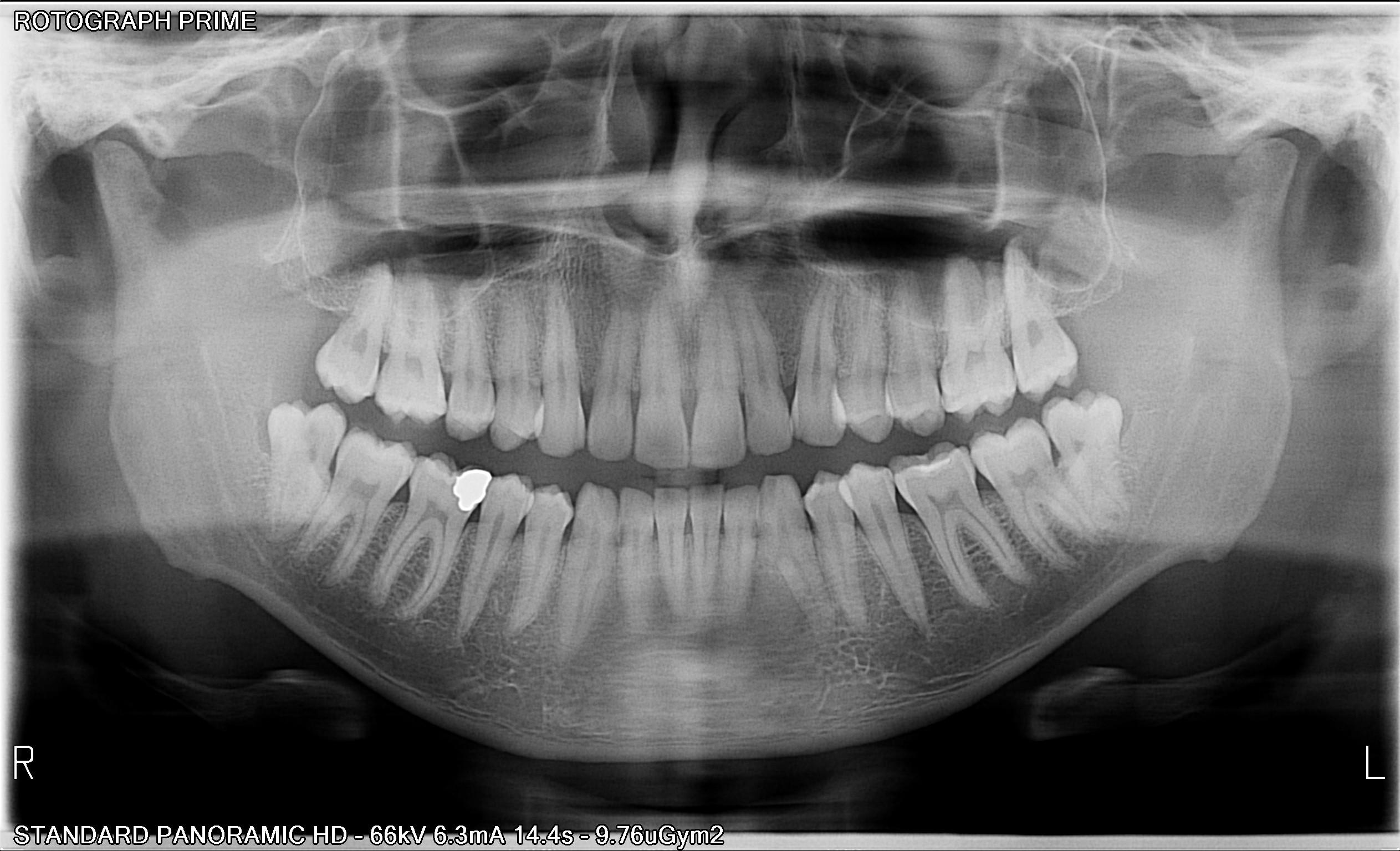 Panoramik röntgen OPG
